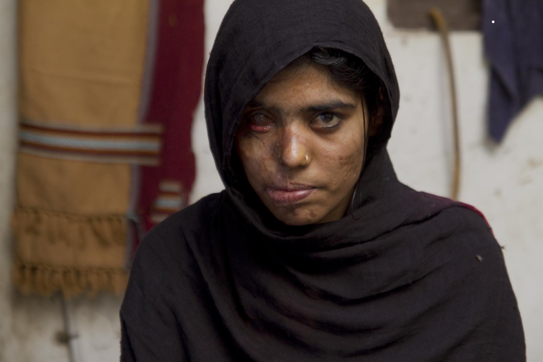 Saving Face - Sharmeen Obaid Chinoy & Daniel Junge (Pakistan)
